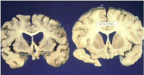 Postmortem brain samples from an HD patient (left) versus healthy control (right).